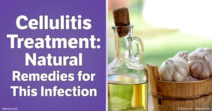 Natural cellulitis treatments are usually effective -- here are some remedies you can try. http://articles.mercola.com/cellulitis/treatment.aspx