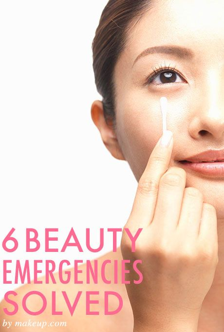 6 simple fixes for the most common beauty emergencies