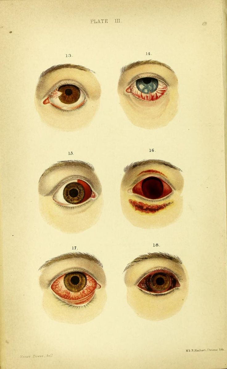 810 best Ophthalmology Oldies images on Pinterest | History, 18th ...