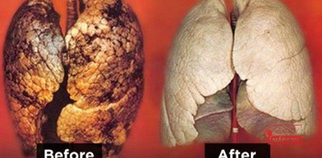 Díky těmto 6 potravinám se zbavíte veškerého nikotinu v těle za 4 dny