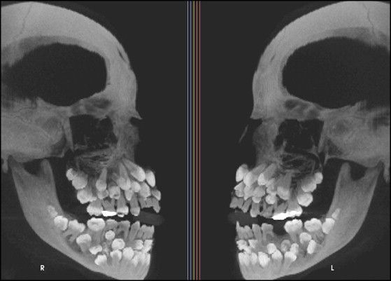 And I thought look at kids' dental X-rays was crazy looking! - Multiple hyperdontia #Artofmoderndentistry