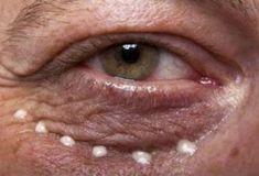 Народные средства от морщин под глазами: Эффект гарантирован! Проверено - Jemchyjinka.ru