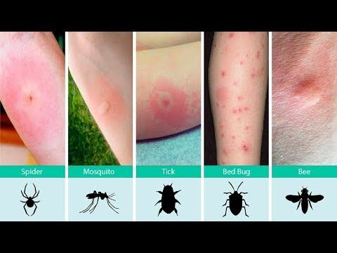 Identifying Bug Bites | Updated for 2019 | Pests.org