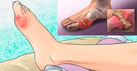Натуральное средство, которое очень эффективно для профилактики подагры и артрита!
