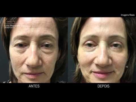 Remoção do Excesso de Pele das Pálpebras (Blefaroplastia Antes e Depois) - Drª Luísa M. Ramos - YouTube