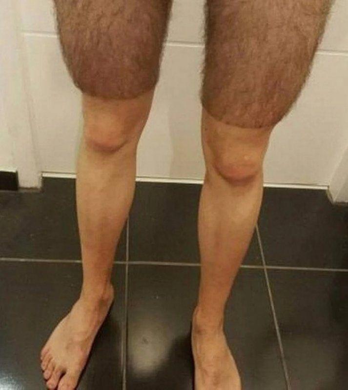 Смешные картинки кривые ноги