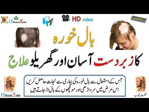 Alopecia Treatment  alopecia cure home remedies  alopecia cure  بال خورہ  کا زبردست آسان اور گھریلو علاج   جس کے استعمال سے بال خورہ کی بیماری سے نجات حاصل کریں  اس مرض میں سر داڑھی اور مونچھوں کے بال اڑ جاتے ہیں   alopecia types  types of hair loss in females with pictures  types of hair loss in females  androgenetic alopecia female treatment
