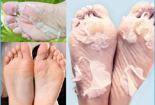 Get Soft Feet with This Efficient Method | pinterest : @tileeeeyahx3 ☼