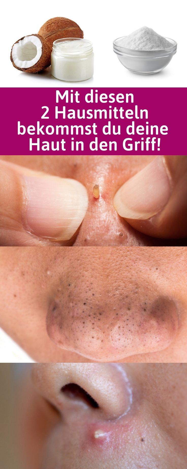 So machst du mit Natron und Kokosöl die beste natürliche Gesichtsmaske für deine Haut