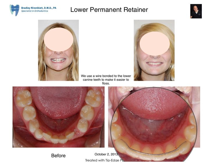 Mejores 20 imgenes de orthodontic treatments en pinterest lower permanent retainer drnirenblatt braces solutioingenieria Gallery