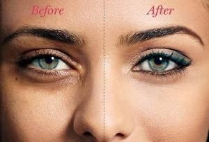 Getting Rid Of Dark Circles 1-Add one teaspoon of baking soda to a hot glass of water or tea and mix well. 2- Next, soak two cotton pads in the mixture before holding them under your eyes for about 15 minutes. When the time is up, rinse your face and add moisturizing cream to the area. 3- You will need to repeat these processes multiple times for the best results. The best part about this technique is that it is both cheap and effective! by eddie