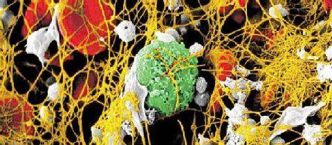 Ein Blutgerinnsel aus Fibrin (gelb) und Blutplättchen (grau). Außerdem: Erythrozyten (rot) und Leukozyten (grün).  Foto: University of Pennsylvania/John Weisel