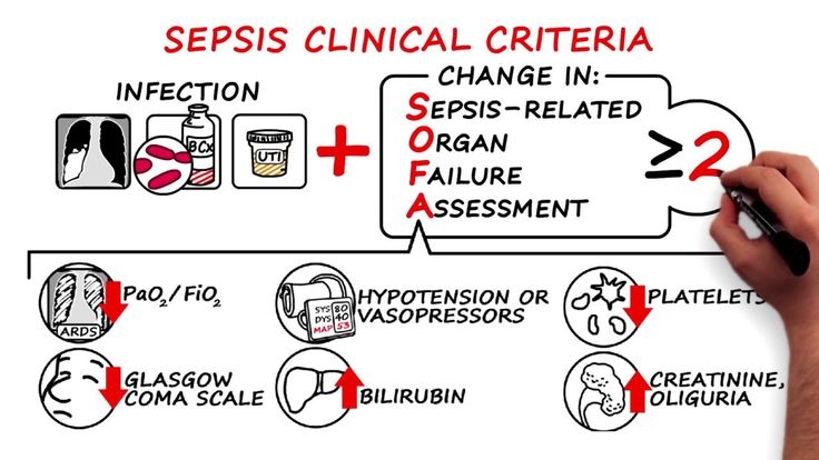 Updated definitions of and clinical criteria for diagnosing sepsis and septic shock based on recommendations from an expert task force