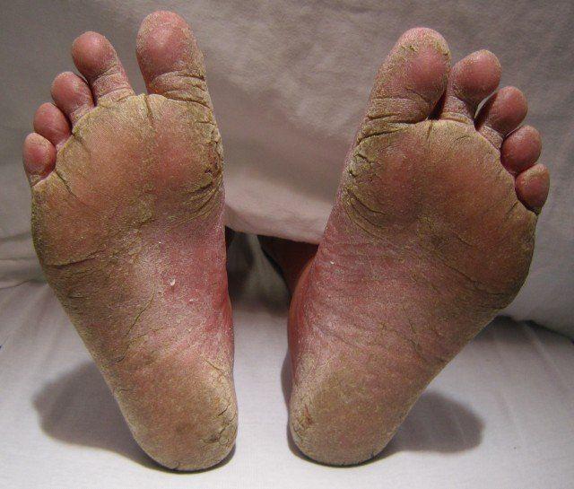 Remedios caseros para el pie de atleta. Los hongos en los pies son contagiosos y pueden transmitirse a través del contacto directo o por contacto con...
