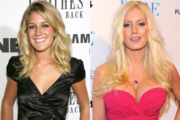 Want a Heidi Montag-esque makeover? Visit our website or give us a call at (949) 870-2688!