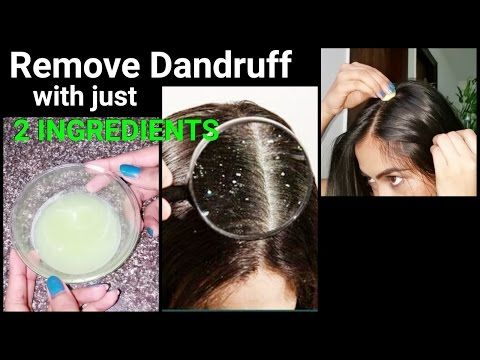 Magical Home Remedy to Remove DANDRUFF at home//Dandruff treatment/How to get rid of dandruff -  CLICK HERE for The No. 1 Itchy Scalp, Dandruff, Dry Flaky Sore Scalp, Scalp Psoriasis Book! #dandruff #scalp #psoriasis Dandruff Treatment at home, How to get rid of dandruff with just 2 ingredients. I Hope this video helps.. love Sanjana💜  If u like this video ,hit the above👍... - #Dandruff