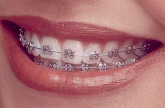 Cost of Braces and What to Look out for When You...