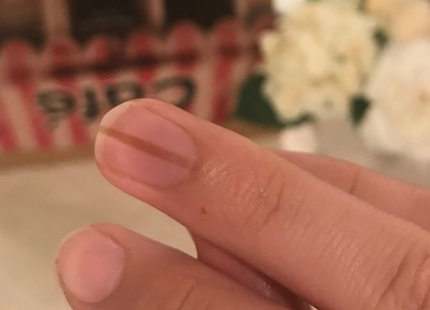 Brown Vertical Lines On Nails In 2020 Lines On Nails Nail Problems How To Do Nails