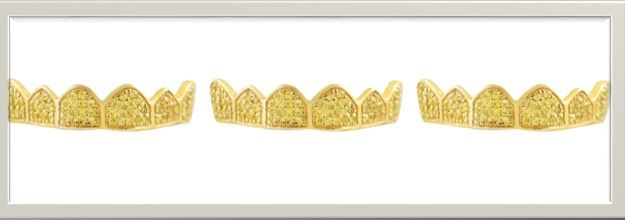 For our beloved clients, here is the hottest collection of #custom #gold #grillz styles of the month by the best online grillz store – Got Grillz. Best gold grillz styles by the best online grillz store