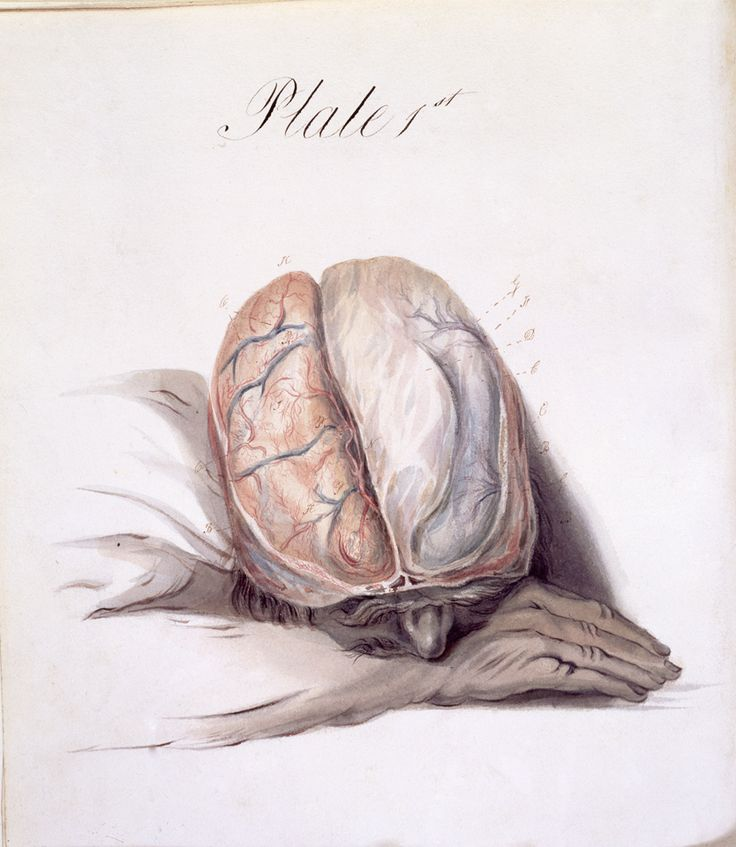 "Sir Charles Bell (1774–1842) published the first edition of 'The Anatomy of the Brain' in 1802. Bell undertook significant work on the localisation of brain function in the cerebrum (the largest portion of the brain, consisting of folded bulges called gyri) and the cerebellum. This plate shows the ""general anatomy and subdivisions of the brain"" and membranes, veins and arteries covering it. The pose of the head shows the usual method of positioning it for dissection at the time."