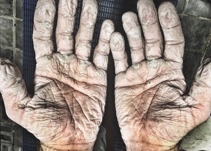 Olympic Rower's Hands After 1,000km Row