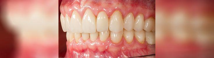 Où chercher le meilleur orthodontiste? Nous vous invitons à voir  ici et contactez-nous immédiatement : http://www.intermedline.com/dental-clinics-romania/ #tourismedentaire #tourismedentaireenRoumanie #voyagedentaire #voyagedentaireenRoumanie #cliniquedentaire #cliniquedentaireenRoumanie #dentistes #dentistesenRoumanie #soinsdentaires #soinsdentairesenRoumanie #orthodontie #orthodontieenRoumanie #orthodontiste #orthodontisteenRoumnaie #traitementorthodontique