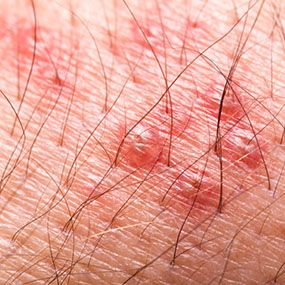 Shingles is a disease that's closely related to chickenpox. The herpes zoster virus, also called varicella-zoster (VZ), causes both chickenpox and shingles.
