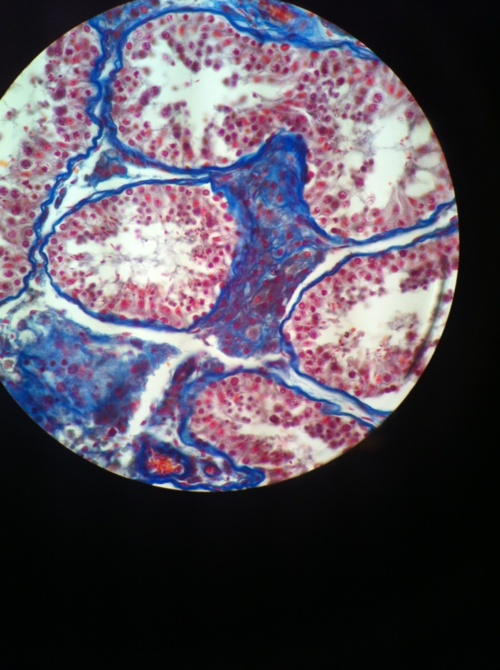 1000+ images about Under the microscope on Pinterest | Red ...