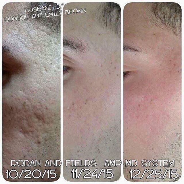 Another amazing before & after of the amp MD roller. Acne scarring.?? Wrinkles.?? Let's talk & get rid of them.! 60 day money back guarantee .! Message me for details #rodanandfields