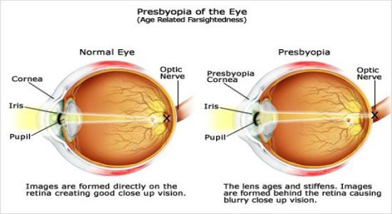 presbyopia explained