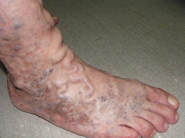 Si sufres de venas varicosas y trombosis esta receta natural es para ti, alivia y mejora la condición de tus piernas... luce unas piernas increíbles!!!
