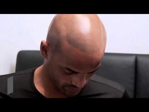 Hair Loss Treatment for Black Men New York - HIS Hair Clinic (Michael's Story) -  How To Stop Hair Loss And Regrow It The Natural Way! CLICK HERE! #hair #hairloss #hairlosswomen #hairtreatment Visit http://www.HisHairClinic.com for more information. See more before & after pictures http://www.hishairclinic.com/gallery/ or visit our forum http://forum.hishairclinic.com... - #HairLoss