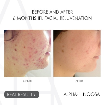 Look at these life changing results happening at Alpha-H Noosa - 6 months of IPL facial rejuvenation! Amazing :)