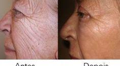 Vick Vaporub é um velho conhecido de todos.Normalmente ele é usado no tratamento de dores de cabeça, garganta, resfriado, tosse, nariz entupido e congestão no peito.No