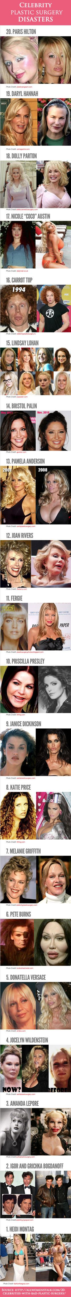 Celebrity plastic surgery disasters! Some of these are ridiculous lol