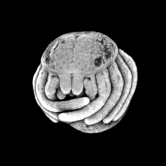 Spider Embryo. Via Molecular characterization ... and embryonic origin of the eyes ... in the common house spider : Parasteatoda tepidariorum.-Fresh Photons