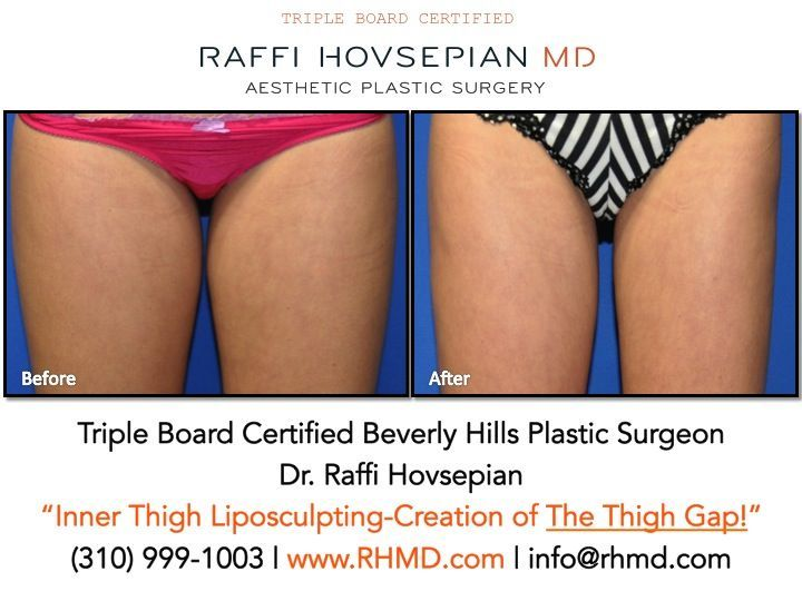 """Dr. Raffi Hovsepian's Before & After of the creation of a """"Thigh Gap"""" with his a…"""