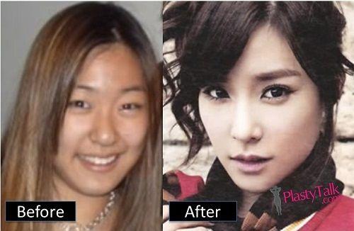 Celebrity Plastic Surgery Korean Photophoto Editing Photo Editing Can Refer To Celebrity Plastic Surgery Plastic Surgery Photos Plastic Surgery