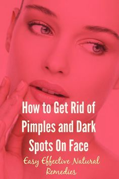 How to Reduce Pimple Marks Naturally at Home