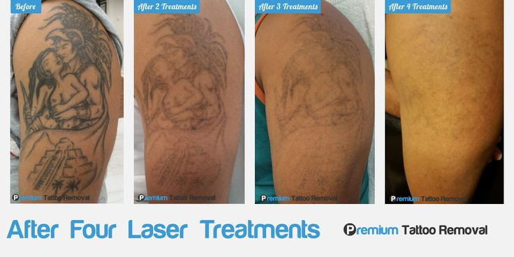 Progress Update! After four laser treatments, this tattoo almost vanished. We are on target to fully remove this tattoo with one more treatment. Our patient couldn't be happier with the result. By giving the body enough time between treatments to remove as much ink as possible, fading progress is enhanced and the number of treatments can be reduced. We take pride in our #tattooremoval treatments and seek the best care for our patients. #premiumtattooremoval #lasertattooremoval