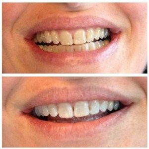 Onder Tibetaanse monniken als eeuwenlang de methode voor wittere tanden is zoveel makkelijker dan ik dacht. Je zult het misschien niet direct hebben doorgehad, maar kijk maar eens naar foto's van T…