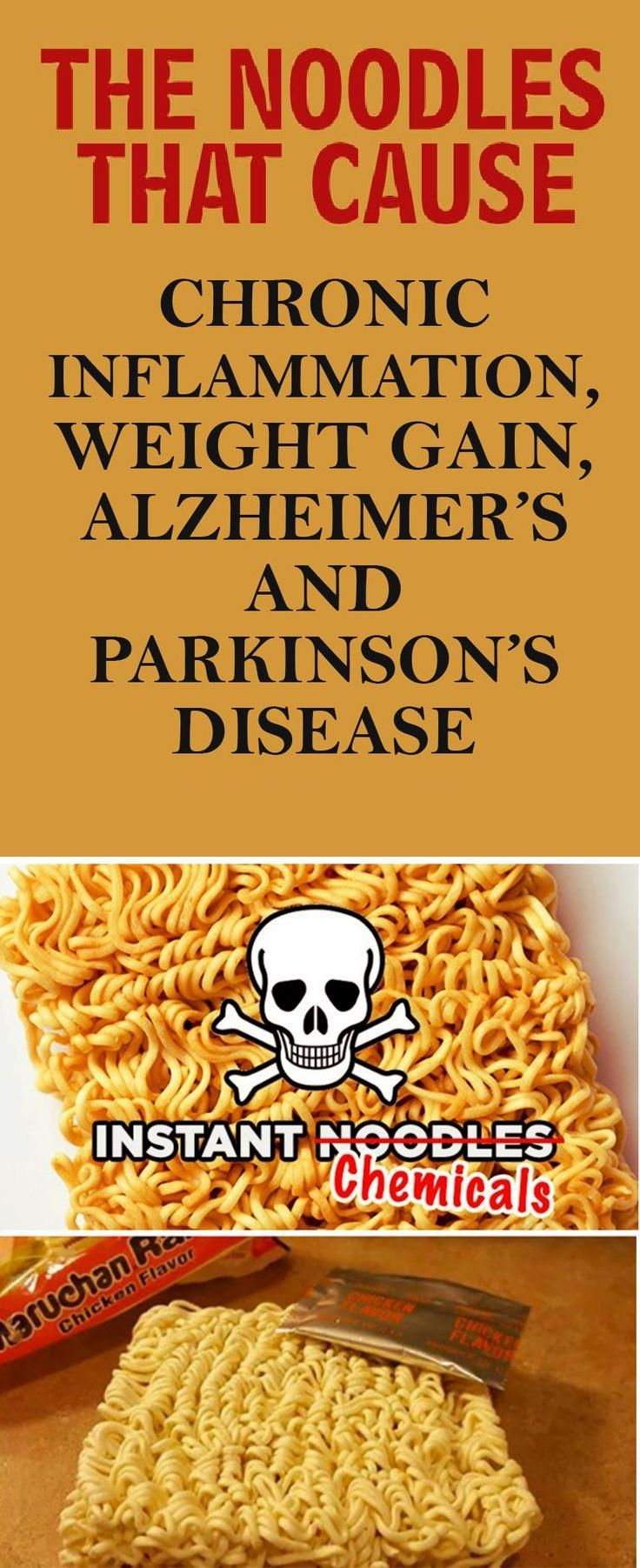 The Noodles That Can Potentially Trigger Alzheimer's, Chronic Inflammation, Parkinson's Disease And Weight Gain