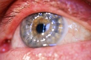 Corneal Transplant Acceptance Could Improve Thanks To New UT Southwestern Procedure