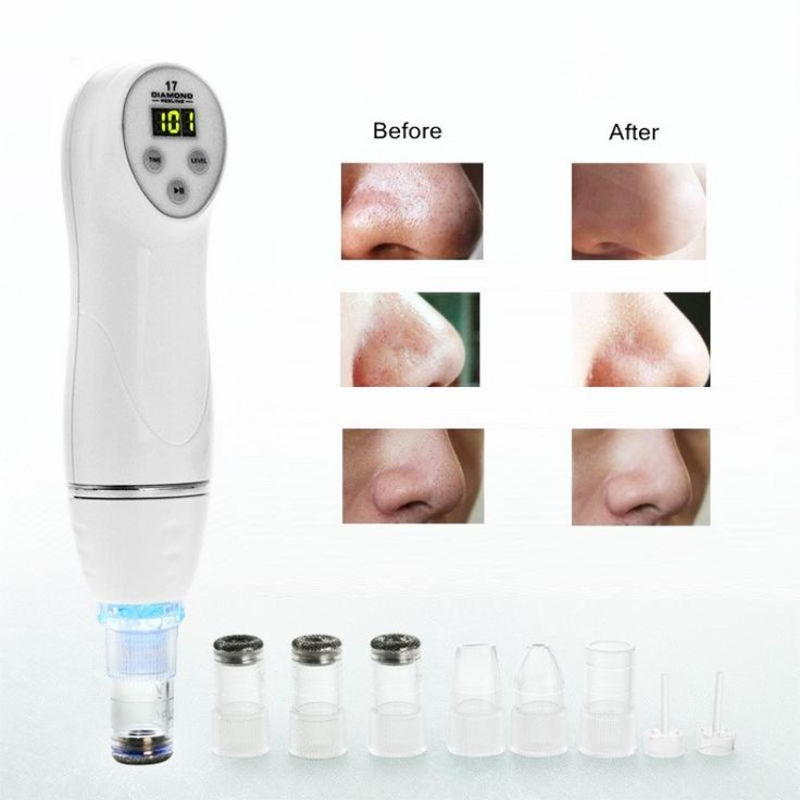 [Visit to Buy] Electronic Blackhead Remover - Skin Diamond Dermabrasion With 6 Tips For Scar Acne Pore Deep Cleaning Peeling #Advertisement