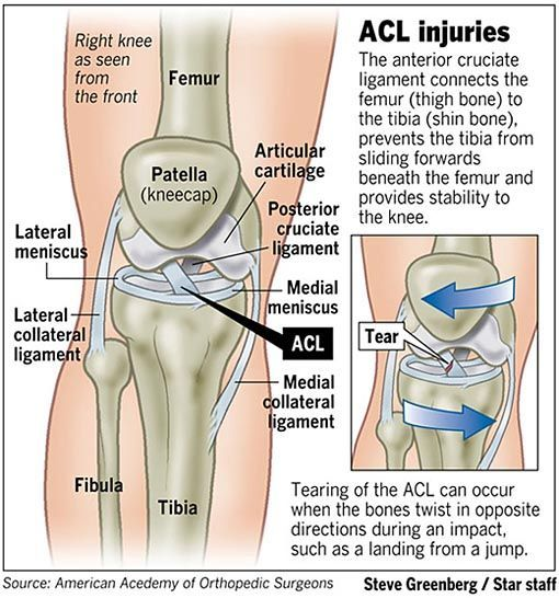 Acl Injuries Acl 510 546 Anatomy