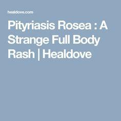 Pityriasis Rosea : A Strange Full Body Rash | Healdove