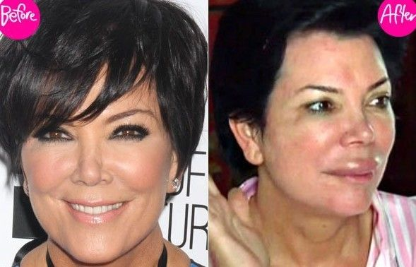 Kris Jenner Plastic Surgery Before and After Photos Nose Job, Facelift and Breast Implants lip injection
