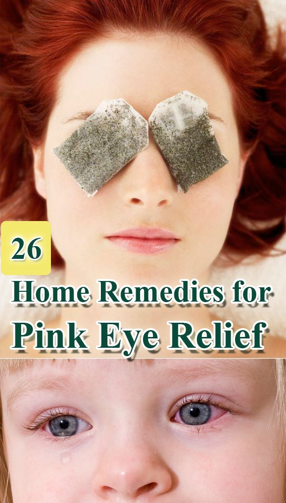 26 Home #Remedies for Pink Eye Relief == http://www.homeremedyshop.com/26-home-remedies-for-pink-eye-relief/