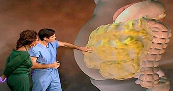 Ce médecin révèle comment supprimer la graisse de votre ventre | NewsMAG