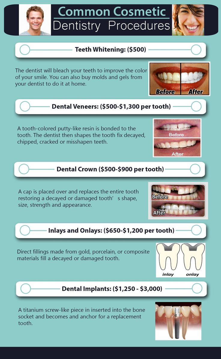 How To Fix Rotting Teeth : rotting, teeth, Cosmetic, Dentistry, Happy, Procedures,, Dentistry,